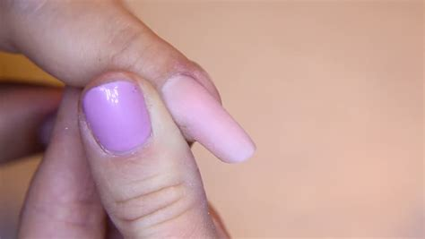 toe nail bed infection toenails with fungal infection sick nail fungus of big