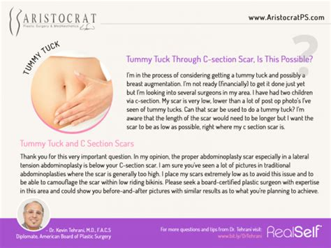 stomach massage after c section tummy tuck procedure with c section scar aristocrat