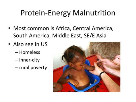 protein malnutrition ppt protein energy malnutrition pem powerpoint