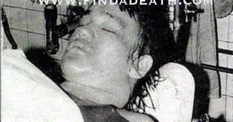 autopsies of famous people autopsy photo release of bruce lee death and miscellanea