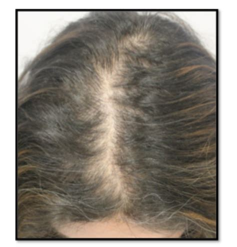 female pattern hair loss medscape female pattern hair loss canadian hair loss foundation