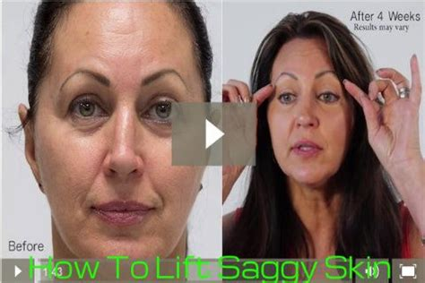 Beverly hills sagging skin skin care products number one skin care
