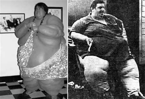 Jon Brower Minnoch Weight Loss | how did they do it the top 7 most astonishing stories of
