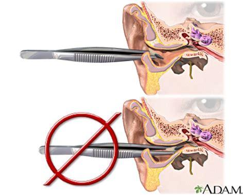 how should i cut by my ears for short womens haircut ear emergencies medlineplus medical encyclopedia