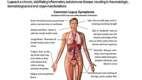 lupus and mood swings common skin disorders in toddlers and adults vkool com