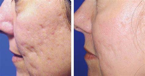 lade e acne lade per macchie acne laser fraxel academia day clinic