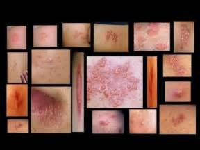 herpes home test herpes symptoms and home testing