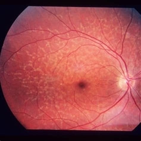 pattern dystrophy of the retinal pigment epithelium discover images retina image bank