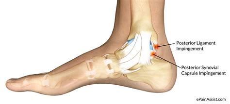 foot diagnosis diagram diagram of a heel spur diagram of piriformis