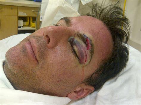 et s mark steines gets a black eye
