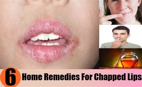 simple home remedies for chapped treatments