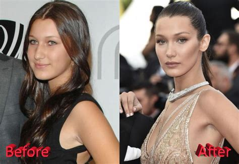 bella hadid before and after plastic surgery plastic what s your take on bella hadid nose job allegations