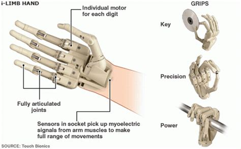 10 prosthetic limbs gearing to simplify things for the