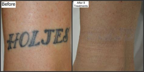 tattoo care after 6 months before and after photos millefiori