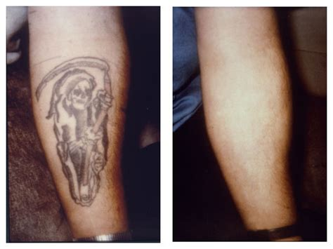 how does skin look after tattoo removal laser removal new look skin center