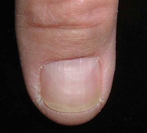 nail bed melanoma fingernail melanoma related keywords fingernail melanoma