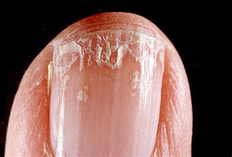 Nail Peel