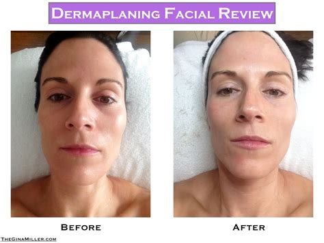 dermaplaning review a simple way to get glowing