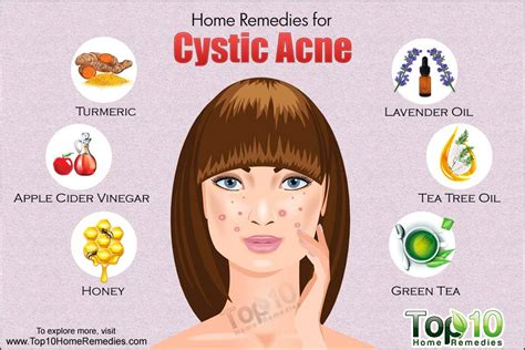 home remedies for cystic acne top 10 home remedies