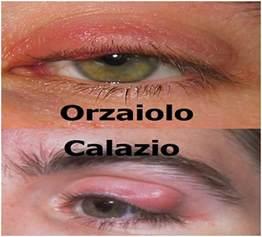calazio interno occhio l orzaiolo e il calazio cause sintomi cura e differenze