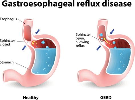 reflux diagram how to get rid of acid reflux naturally