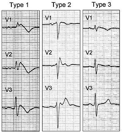 brugada pattern types brugada syndrome wikipedia