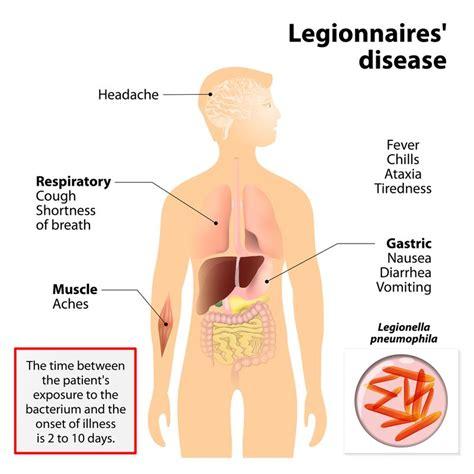 Legionnaires Disease I | largest legionnaires disease outbreak in nyc history 10