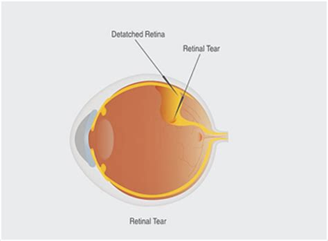 floaters in eye with flashes of light eye floaters or retinal detachment natural herbal medicine
