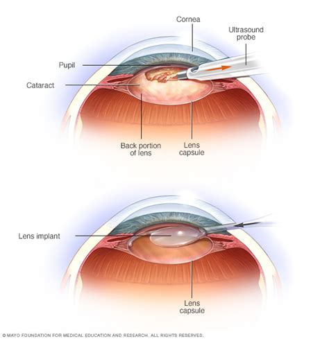 couching eye cataracts disease reference guide drugs com