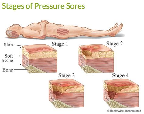 How To Prevent Bed Sores by Bed And Or Chair Rest Neglect Bedsores
