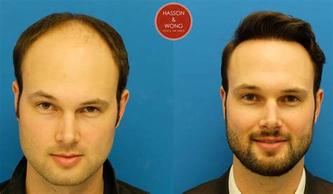neograft in turkey hair transplant cost hair transplant surgery cost financing