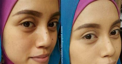 Cara Menghilangkan Flek Hitam Dan Bintik Noda Di Wajah cara menghilangkan noda hitam di wajah pakai mentimun hikmah kesehatan