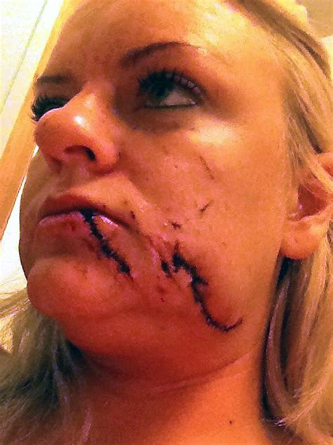 stitches face bridesmaid had 100 stitches in after being