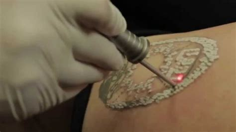 tattoo removal new jersey laser tattoo removal nj youtube