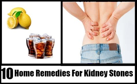10 home remedies for kidney stones remedy