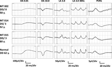 pattern erg iscev electrophysiological findings show generalised post
