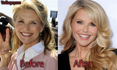 Christie Brinkley Gets Emergency Surgery by Christie Brinkley Plastic Surgery Before And After Botox