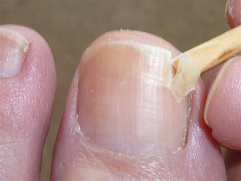 cracked nail how to fix a broken nail about money