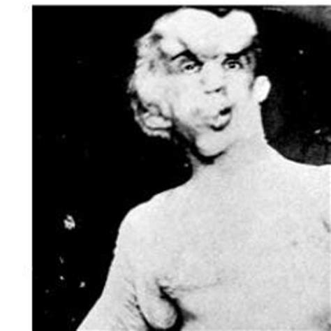 the elephant man 400 headwords trama joseph merrick thelephantman twitter
