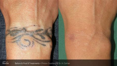 laser tattoo removal detroit elite ink