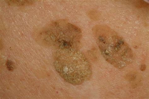 spots on skin liver spots pictures skin causes treatment