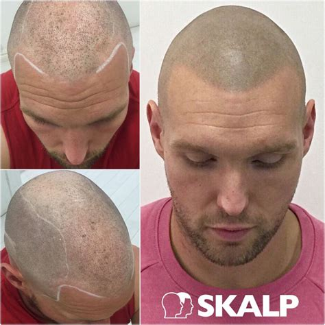 scalp micropigmentation to make hair ticker pictures 101 best images about skalp post hairloss treatment photos