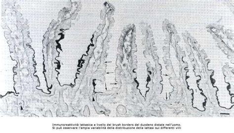 breath test all idrogeno diagnostica dna