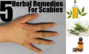 home treatment for scabies top 5 herbal remedies for scabies treatments for scabies