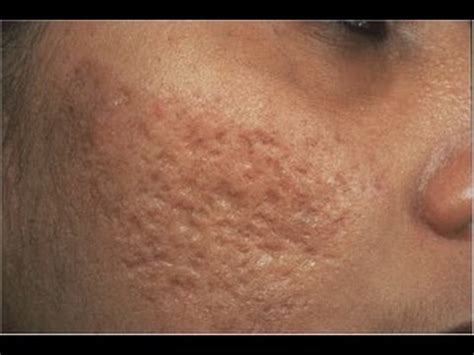 hide hair scar marks dermtv removing acne scars dermtv com 61 youtube
