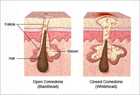 diagram of a pimple acne visual dictionary pictures of types of acne and how