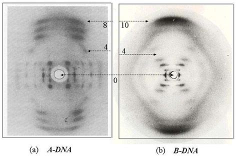x ray diffraction pattern of dna how does one physically interpret the different