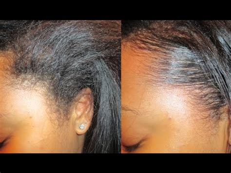 what does hair edges mean tutorial how to lay your edges down flat youtube