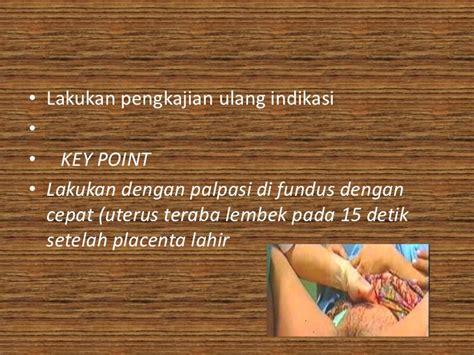 Sarung Tangan Steril atonia uteri