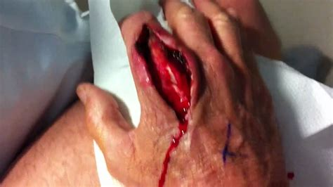 infected tattoo cut open joe s mrsa infected finger in motion post surgery youtube